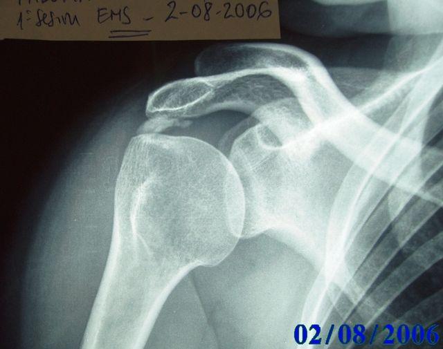 Calcificación de hombro. Fisioterapia y Antiterapia - Blog ...